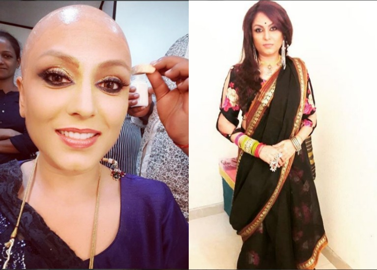 This 'Ishqbaaaz' actress will sport a BALD look in the show!